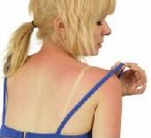 Las quemaduras solares y sus remedios caseros