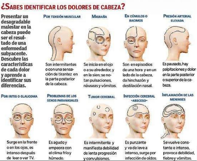 ¿Sabes identificar los dolores de cabeza?